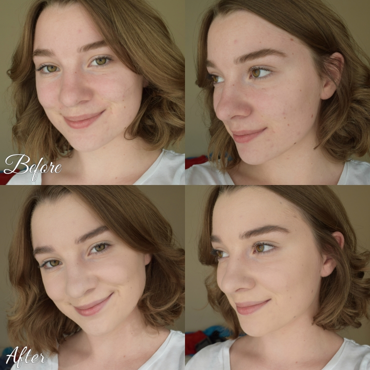 foundation-before-after-comparison